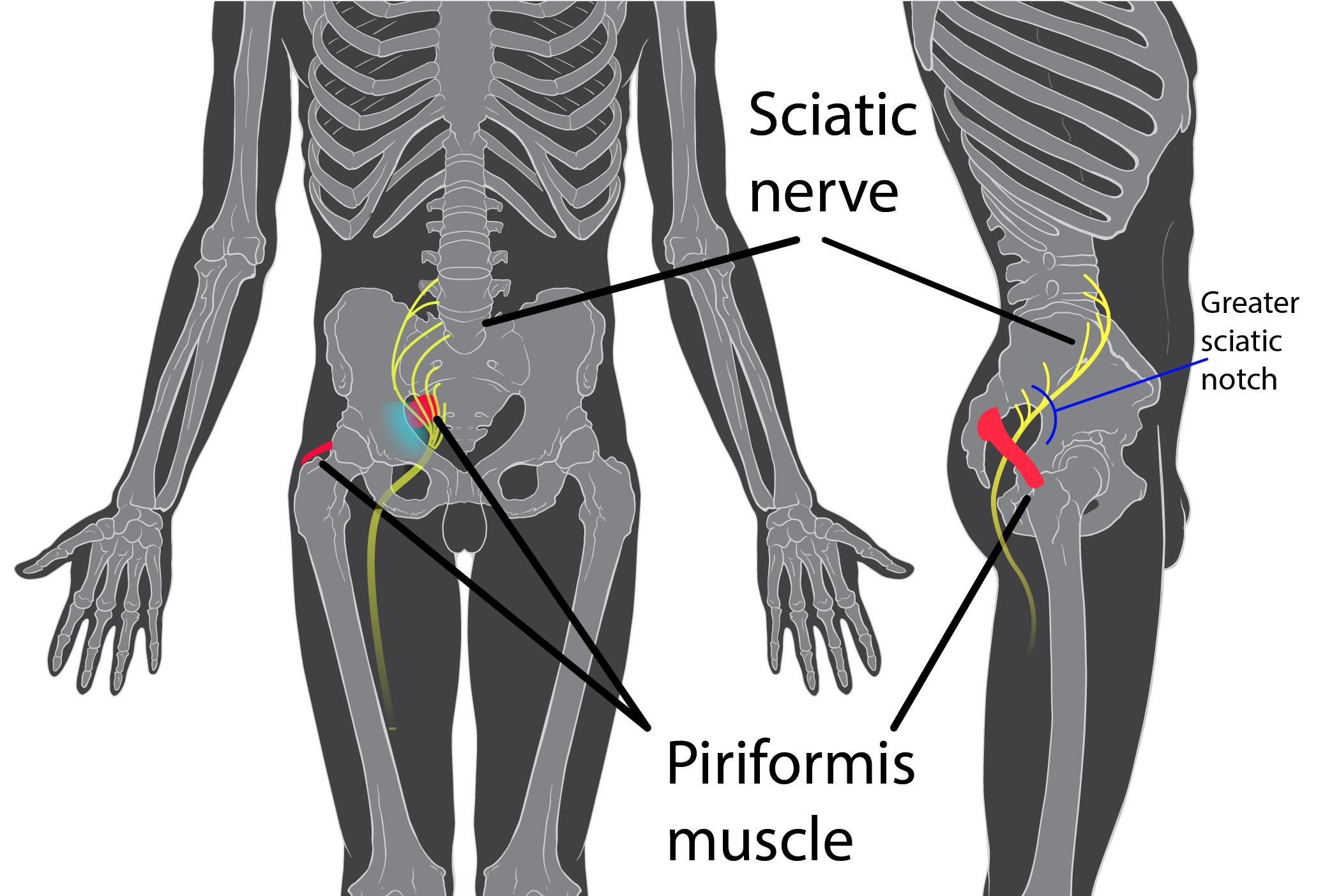 Face profil et lateral du passage du nerf sciatique sur un squelette